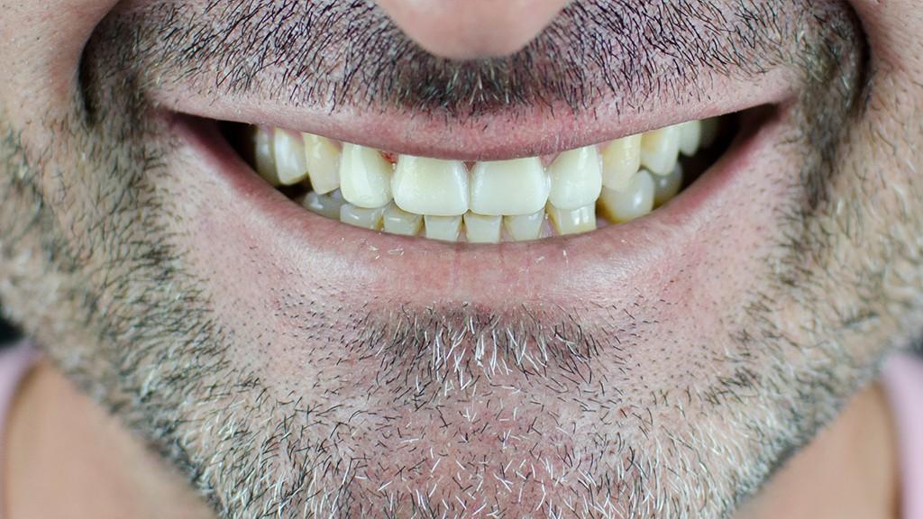 Carillas dentales después