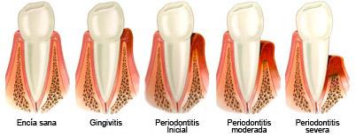 periodontitis evolucion