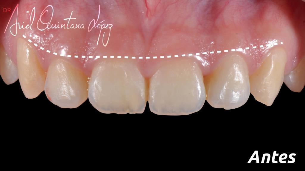gingivectomía antes