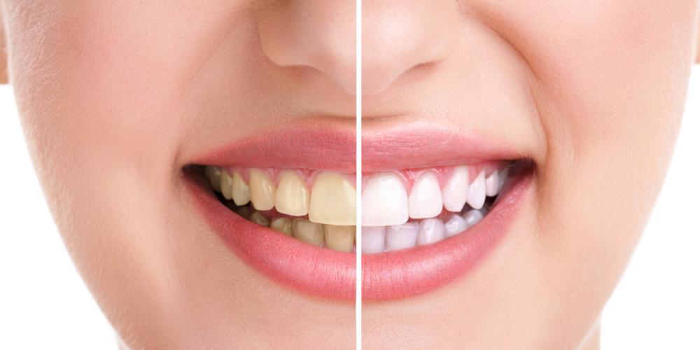 blanqueamiento dental y contorneado dental estético