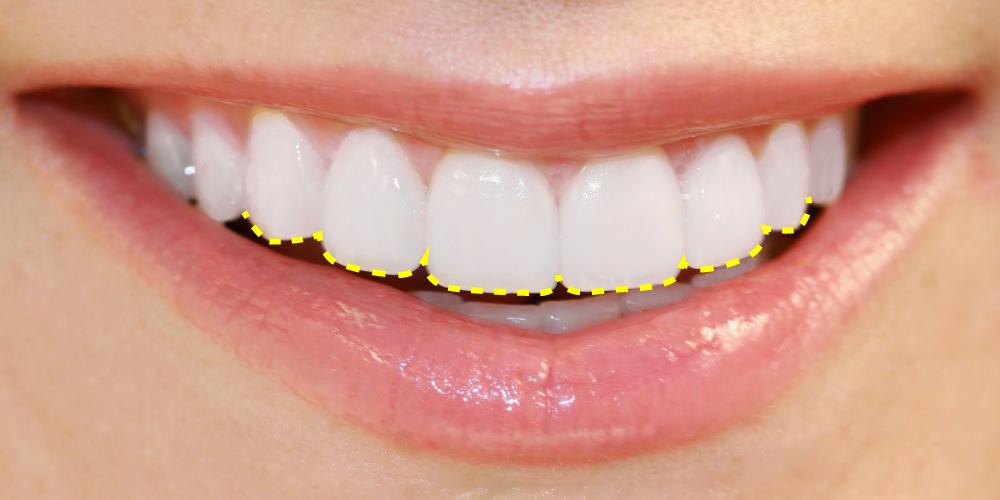 Delimitación contorneado dental estetico