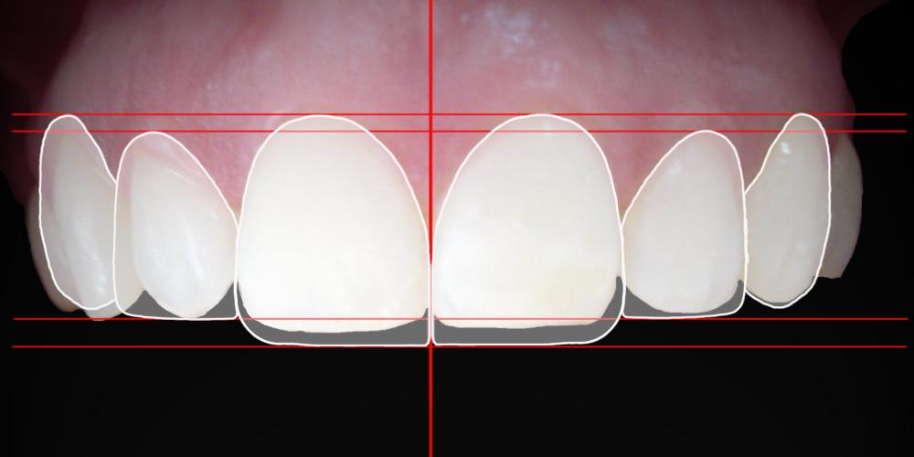 Contorneado Dental Estético