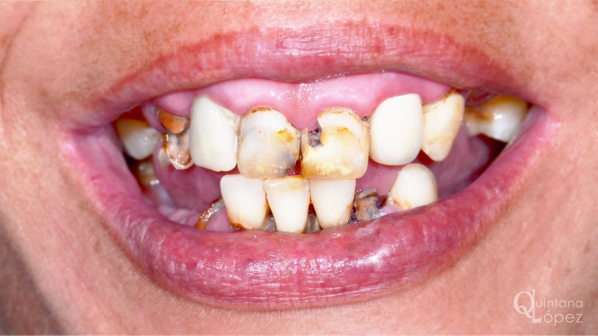 implante-4-antes
