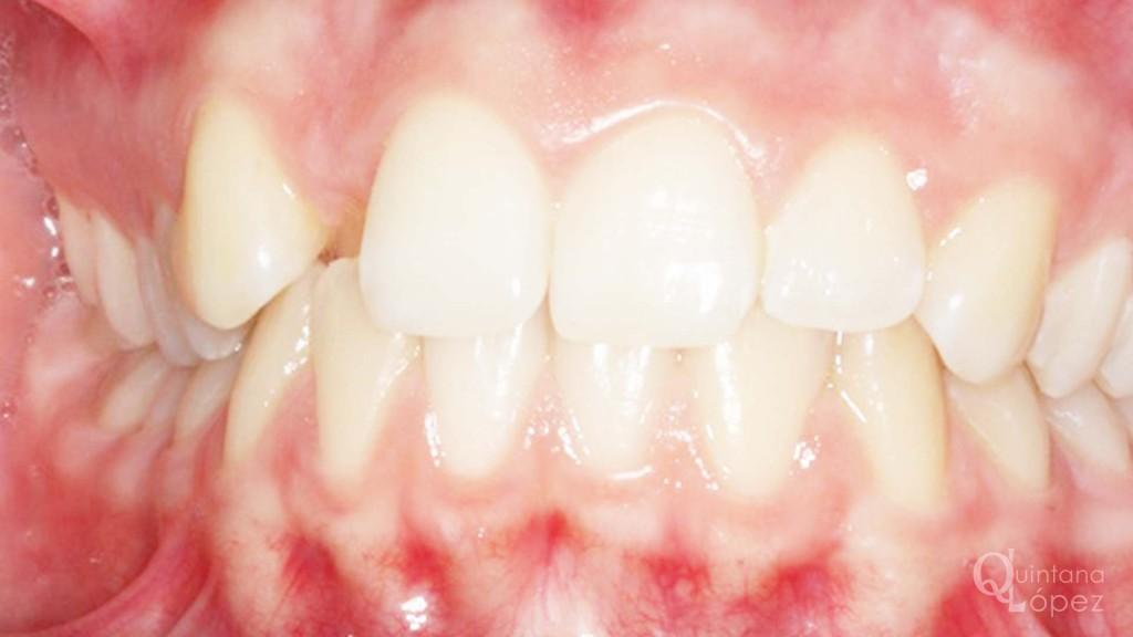 ortodoncia caso clínico 10 antes