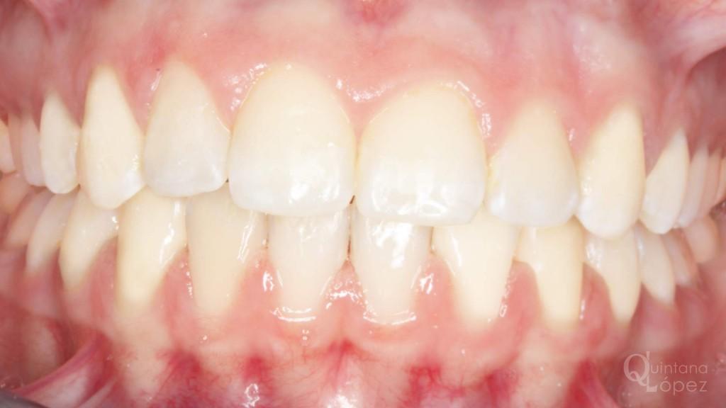 ortodoncia caso clínico 10 después