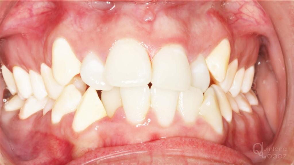 ortodoncia caso clínico 9 antes