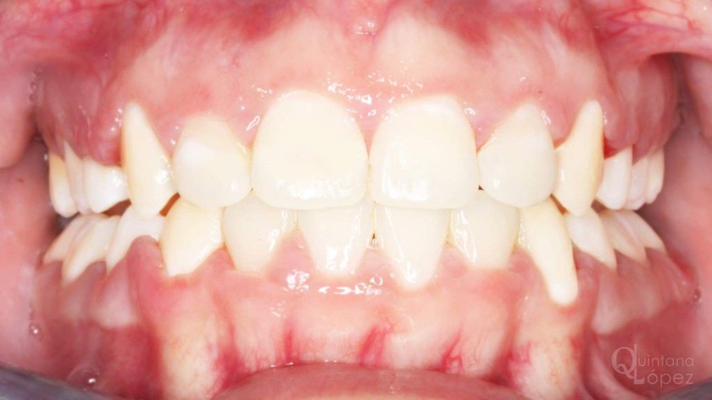 ortodoncia caso clínico 9 después