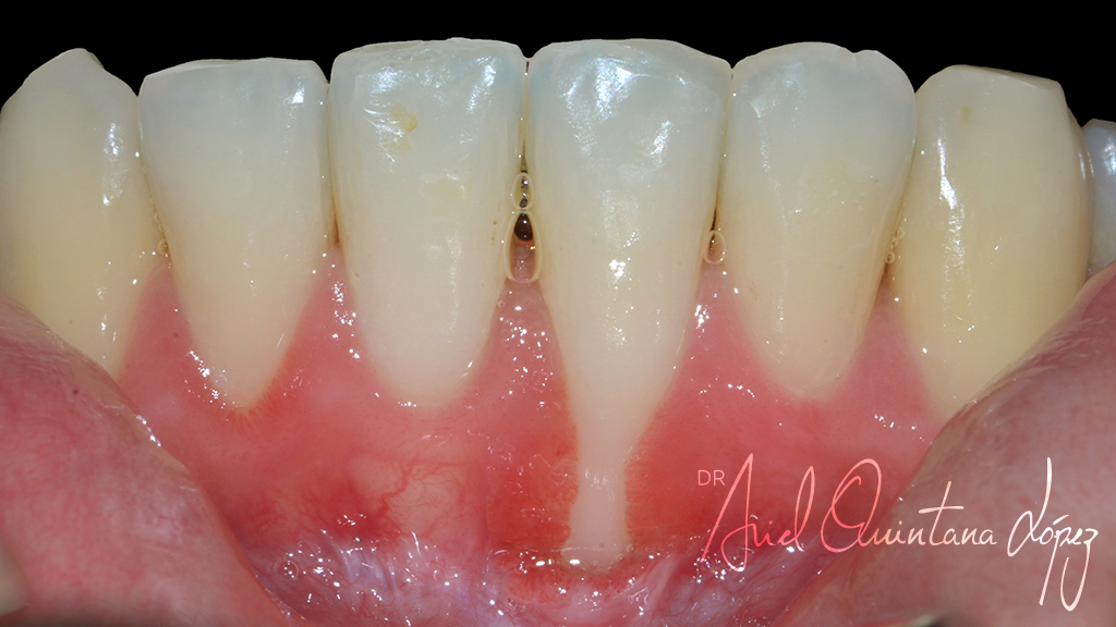recesion-gingival-antes