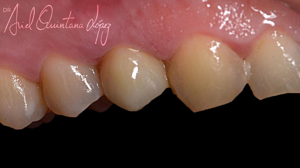 implantesdentales de disilicato de litio despues