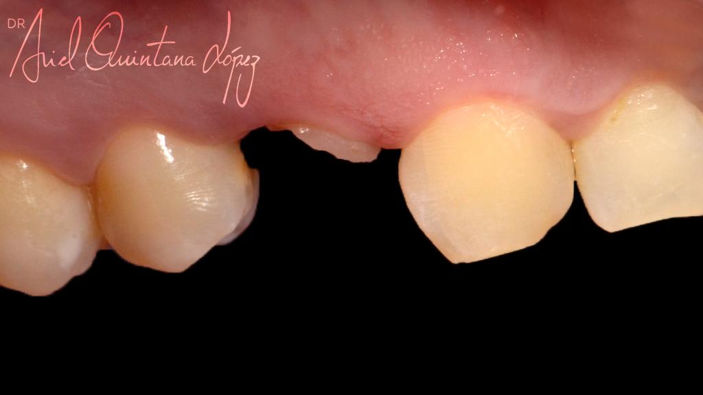 implantesdentales de disilicato de litio