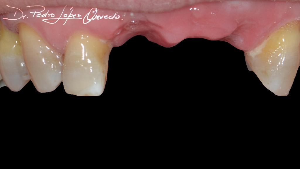 prótesis parcial acrílica removible