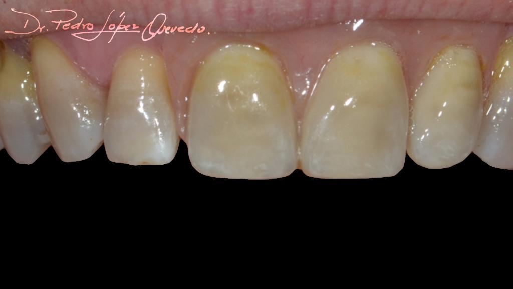 prótesis parcial acrílica removible despues