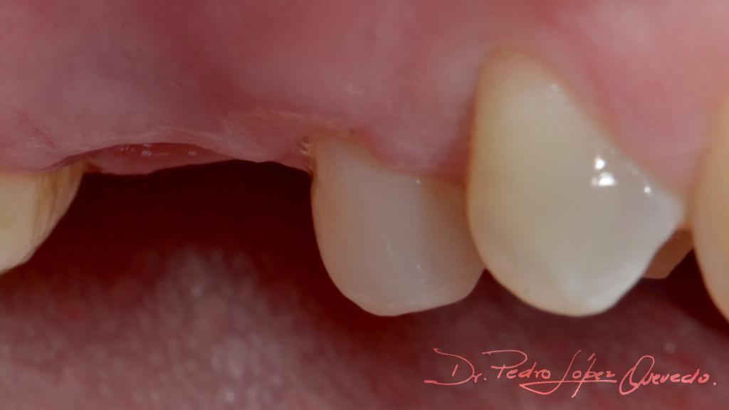 molar superior derecho