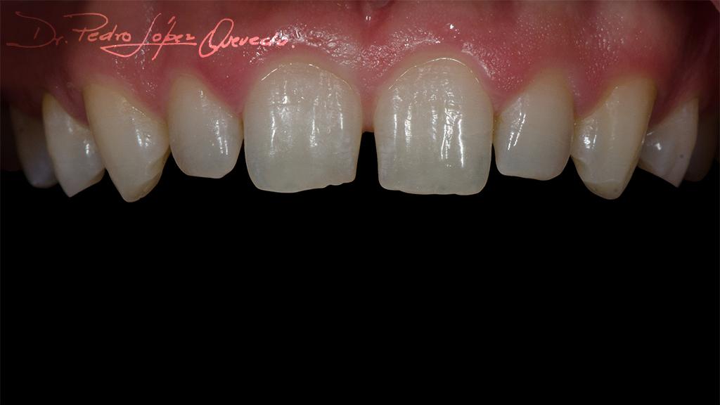 carillas dentales de disislicato de litio