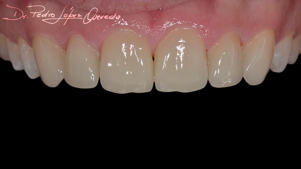 carillas dentales de disislicato de litio post