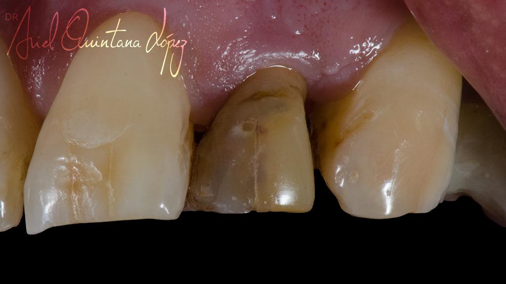 diente necrotico