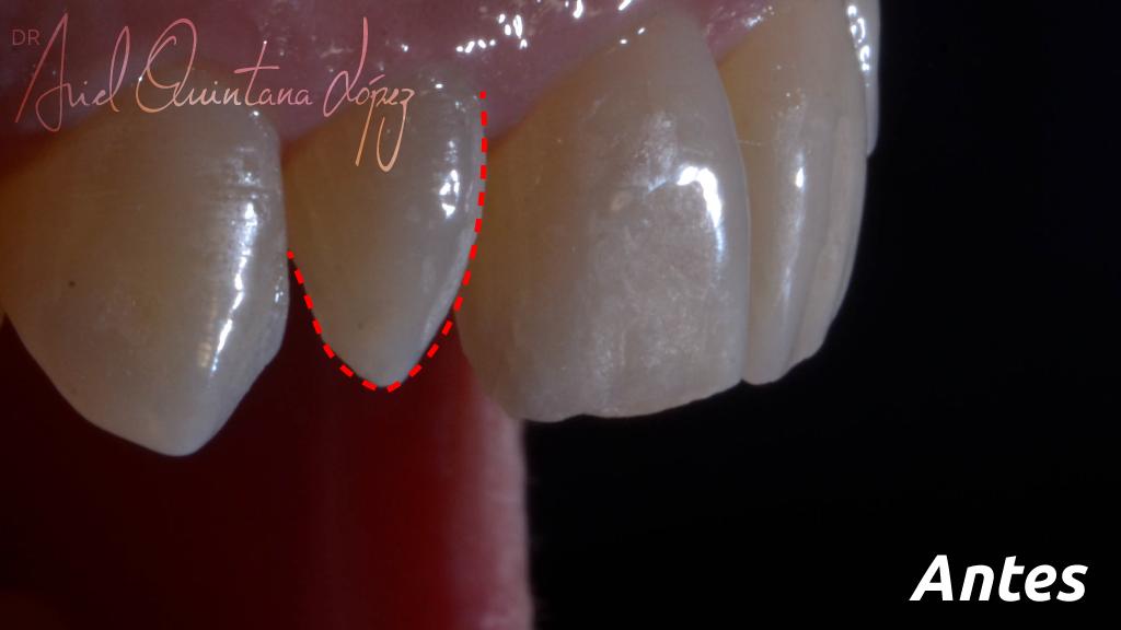 Corrección de diente conoide Antes