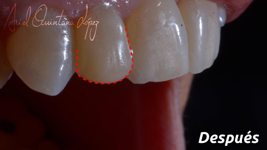Corrección de diente conoide Después